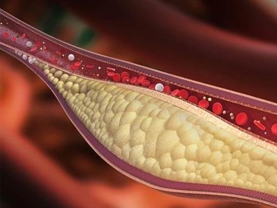 چند نسخه برای درما چربی خون