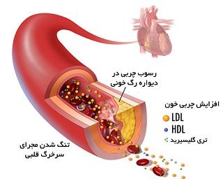 علل و درمان غلظت خون در طب سنتی